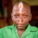 Links to An Inspiring Update on the Boy with the Bright Blue Eyes