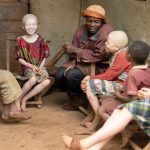 Links to 5 things children with albinism want you to know