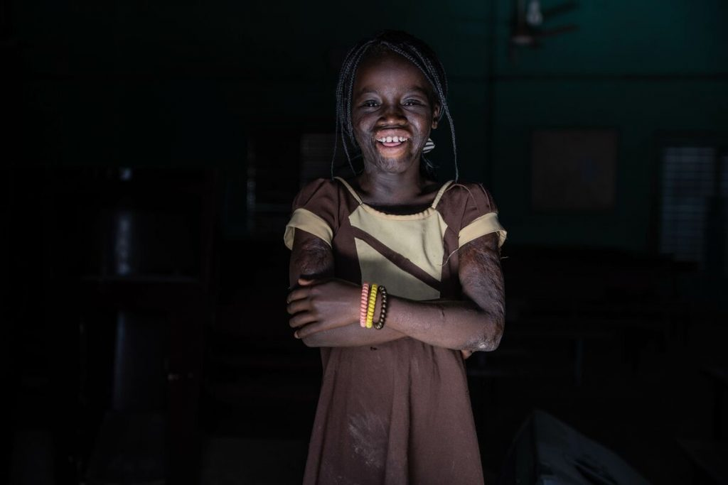 Rihanata pictured smiling with her arms crossed with a dark background. You can see the scars on her face and her arms from her accident.