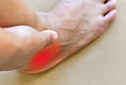 pain from ankle sprain