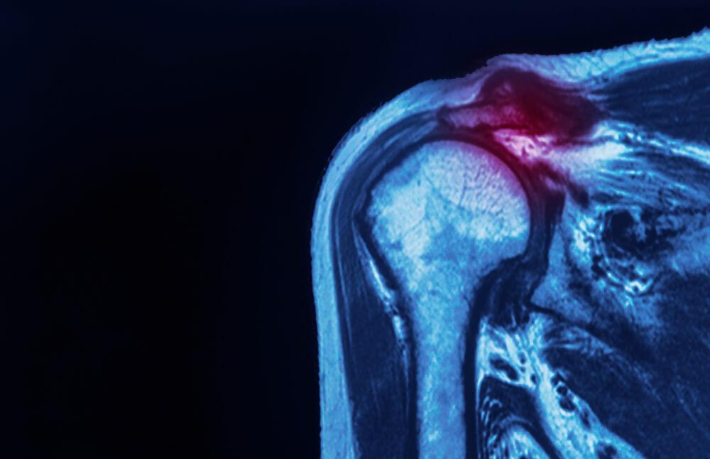 xray of rotator cuff tear in shoulder