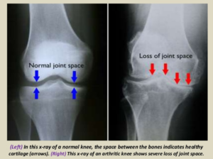 My X Rays Show Arthritis Should I Be Worried Therapia