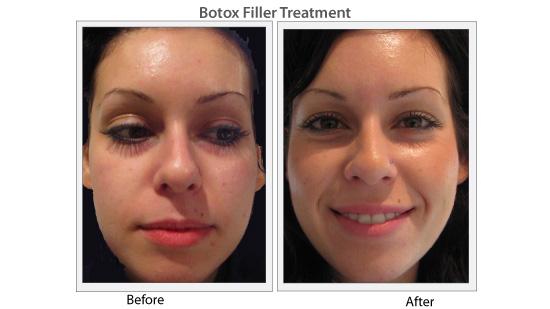 bandf_botox1_ads