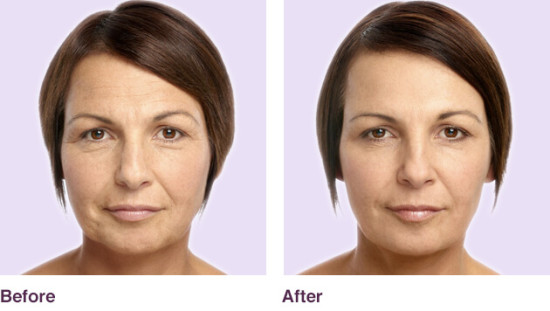 carolyn-before-after