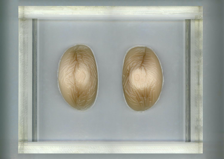 Katerina Jebb, Silicone Object Suspended In Plexi Glass, 2015